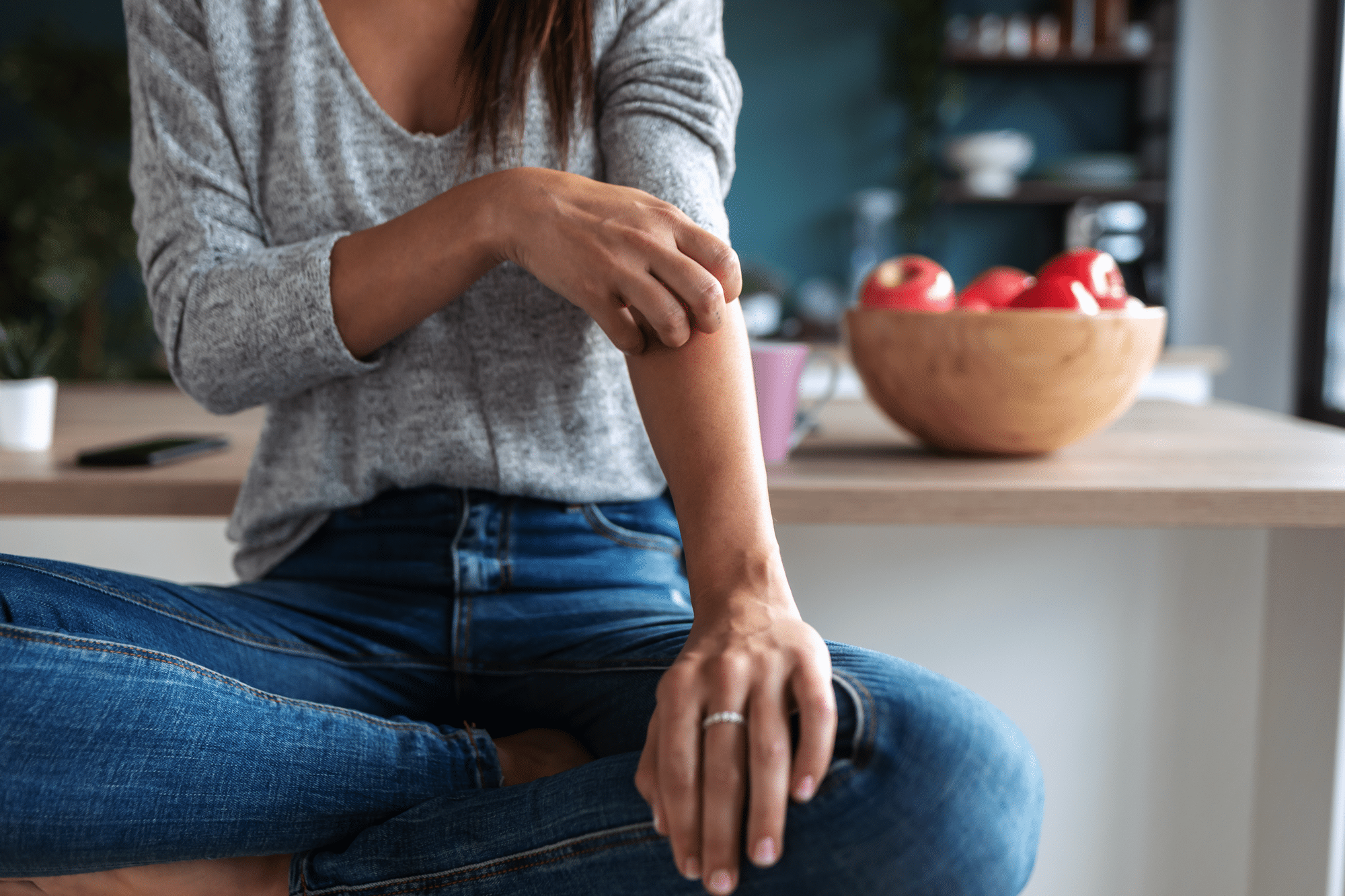 Cannabidiol For Psoriasis: Can CBD Help With Psoriasis?